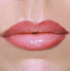 Хиалурон в устните варна ж